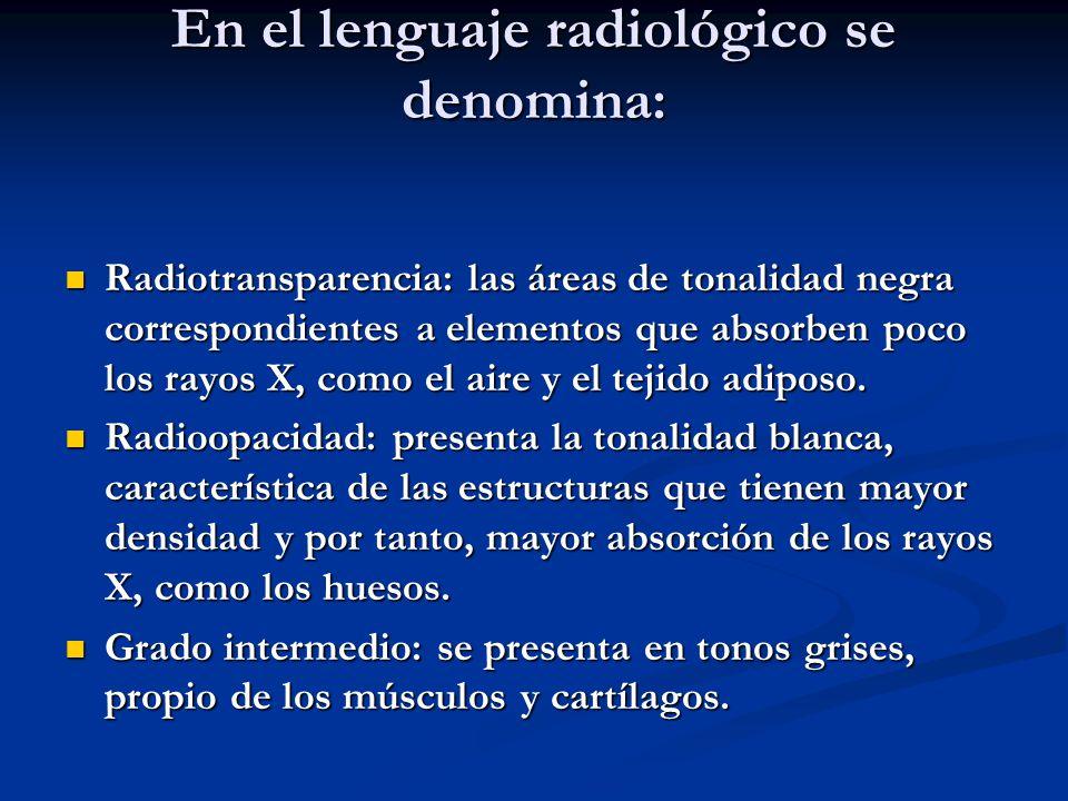 En el lenguaje radiológico se denomina: