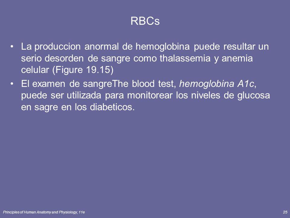 RBCs La produccion anormal de hemoglobina puede resultar un serio desorden de sangre como thalassemia y anemia celular (Figure 19.15)