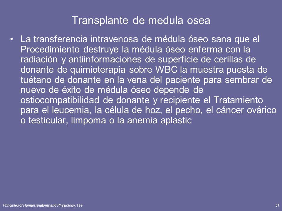 Transplante de medula osea