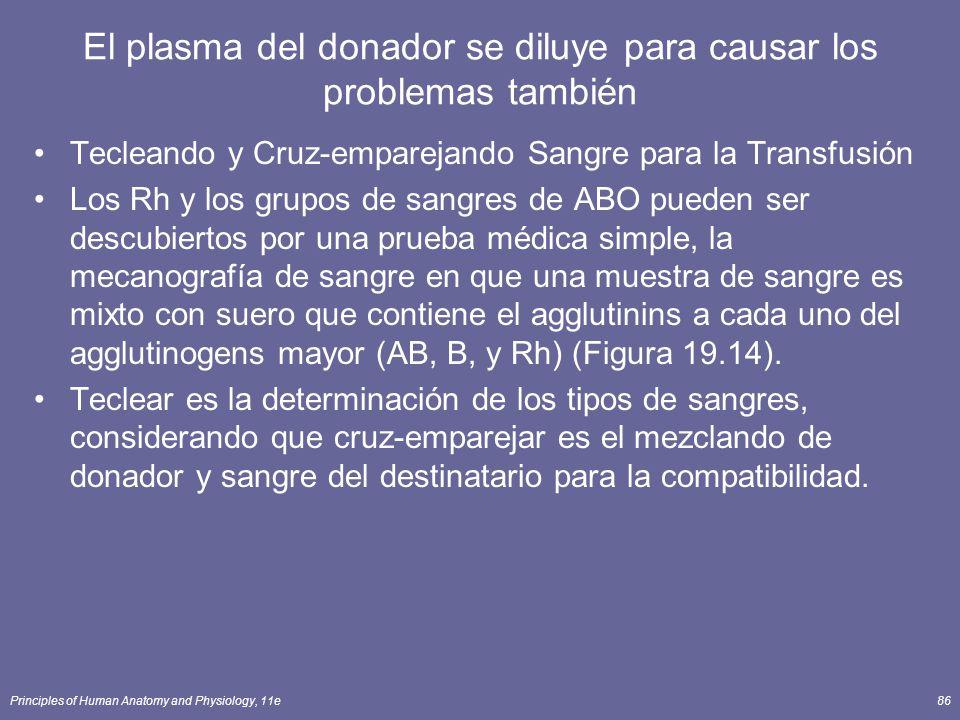 El plasma del donador se diluye para causar los problemas también