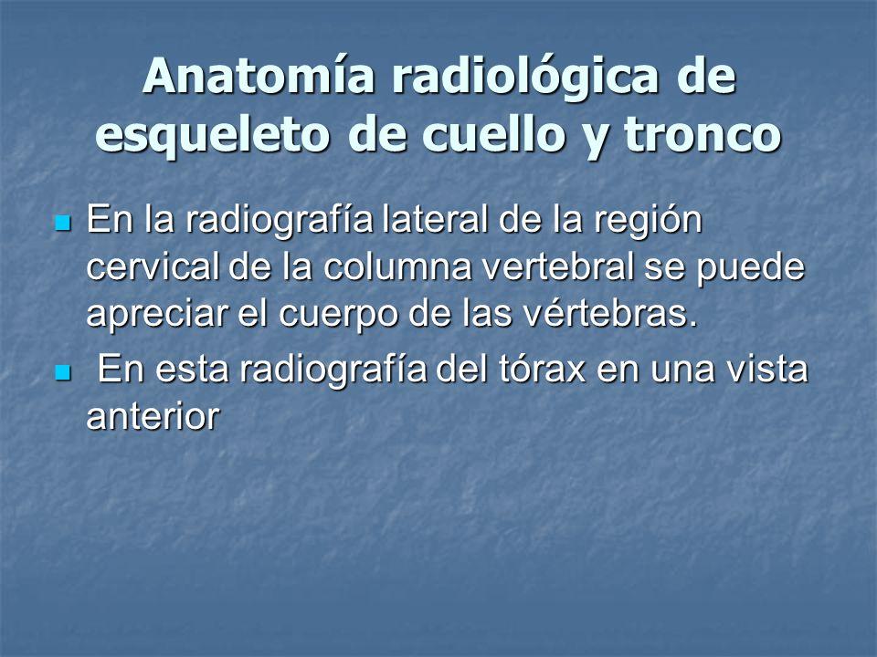 Anatomía radiológica de esqueleto de cuello y tronco