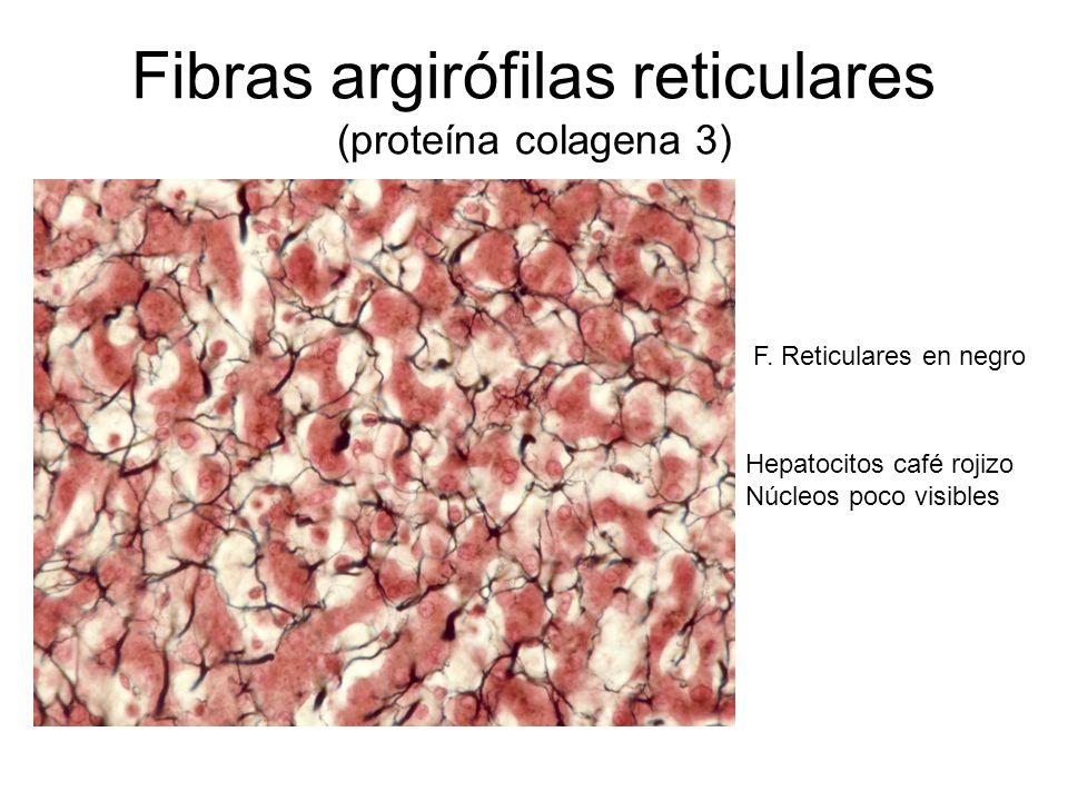 Fibras argirófilas reticulares (proteína colagena 3)