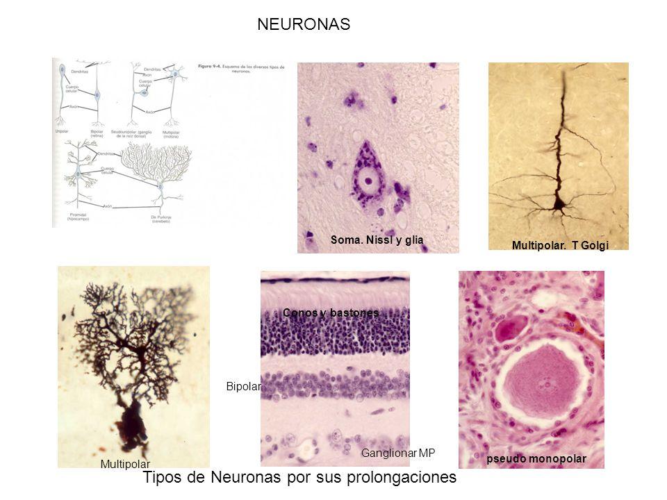 Tipos de Neuronas por sus prolongaciones