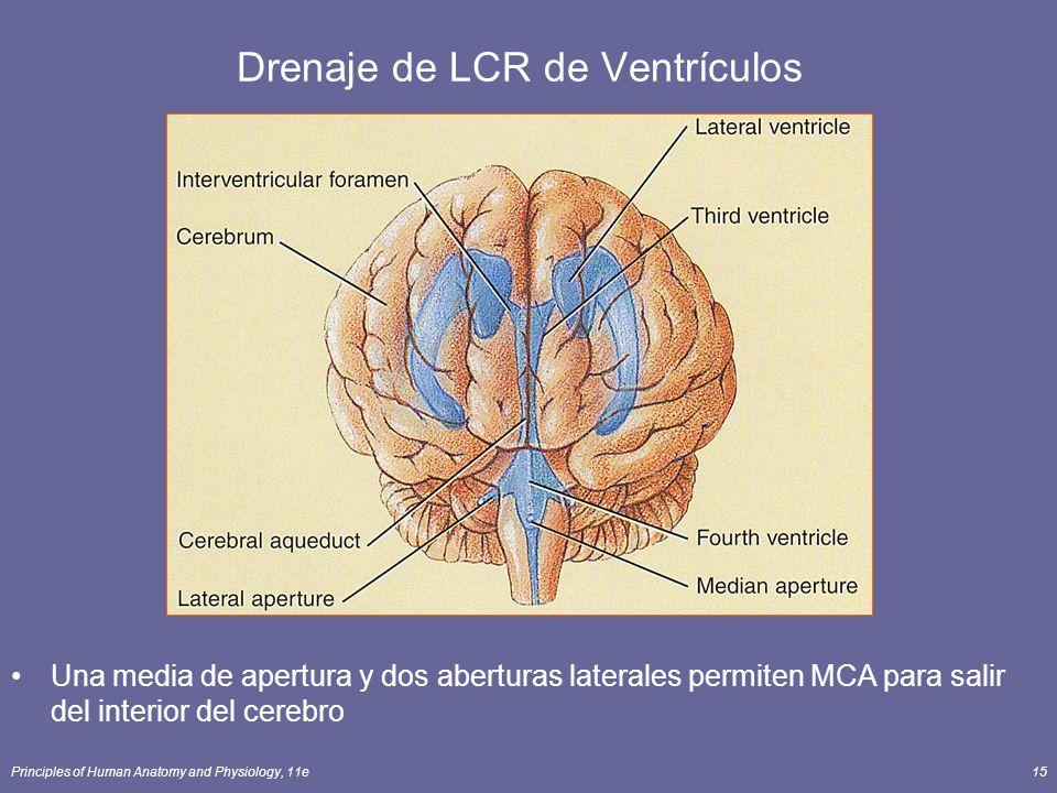 Drenaje de LCR de Ventrículos