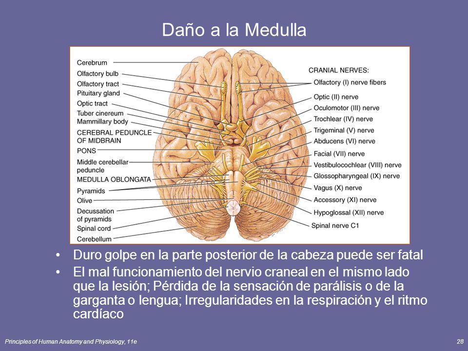Daño a la Medulla Duro golpe en la parte posterior de la cabeza puede ser fatal.