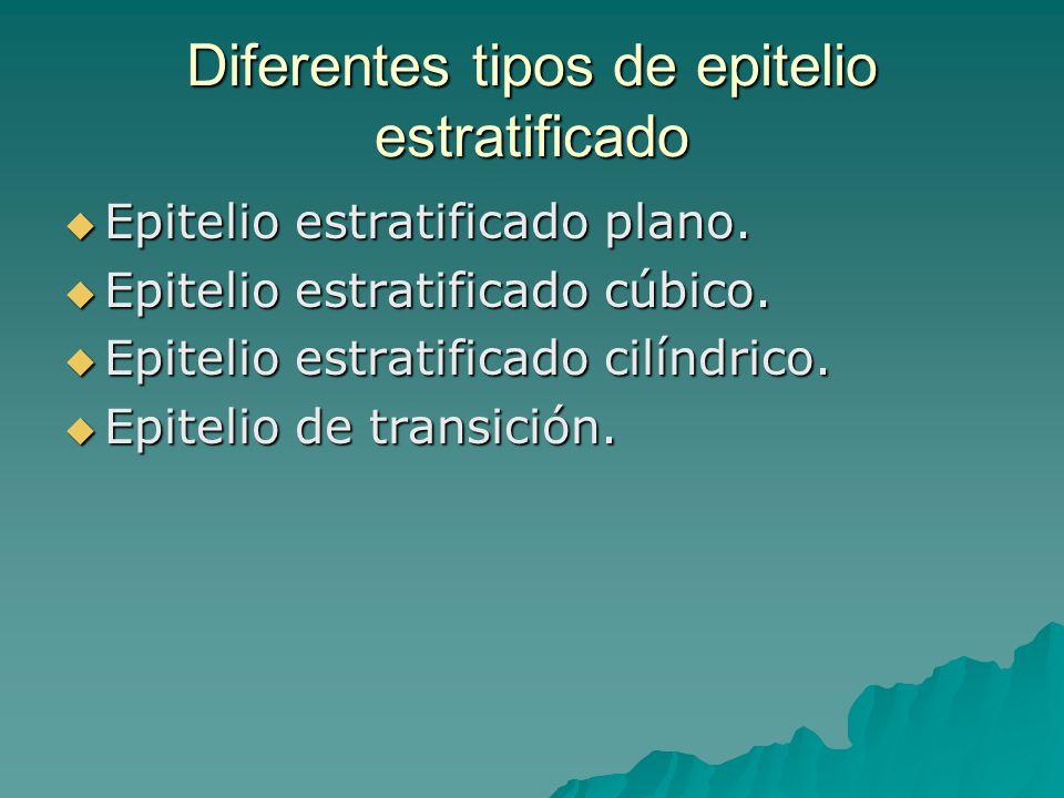 Diferentes tipos de epitelio estratificado