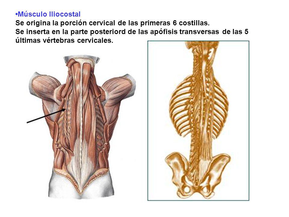 •Músculo Iliocostal Se origina la porción cervical de las primeras 6 costillas.