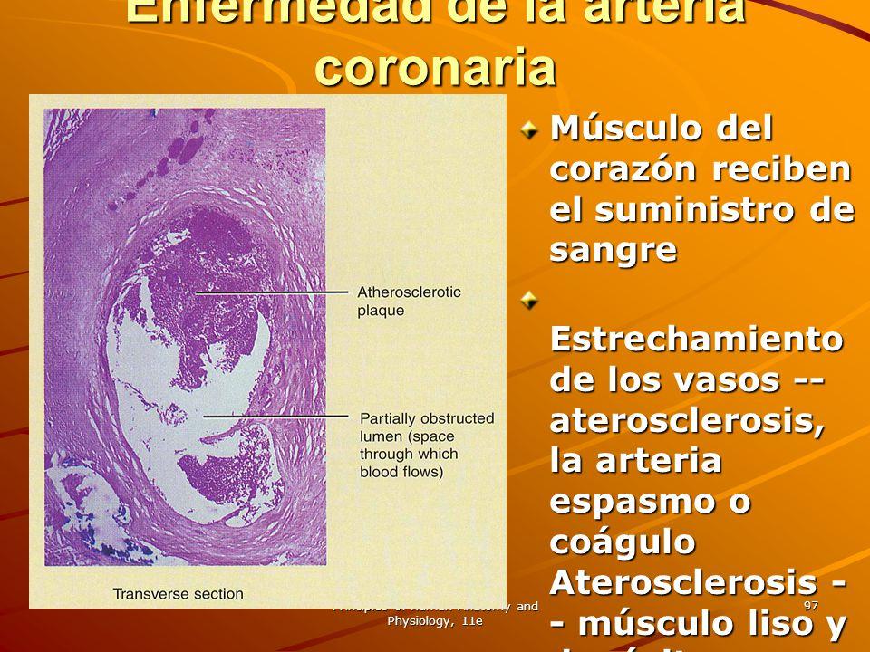 Enfermedad de la arteria coronaria