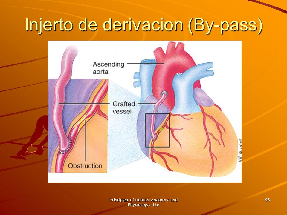 Injerto de derivacion (By-pass)