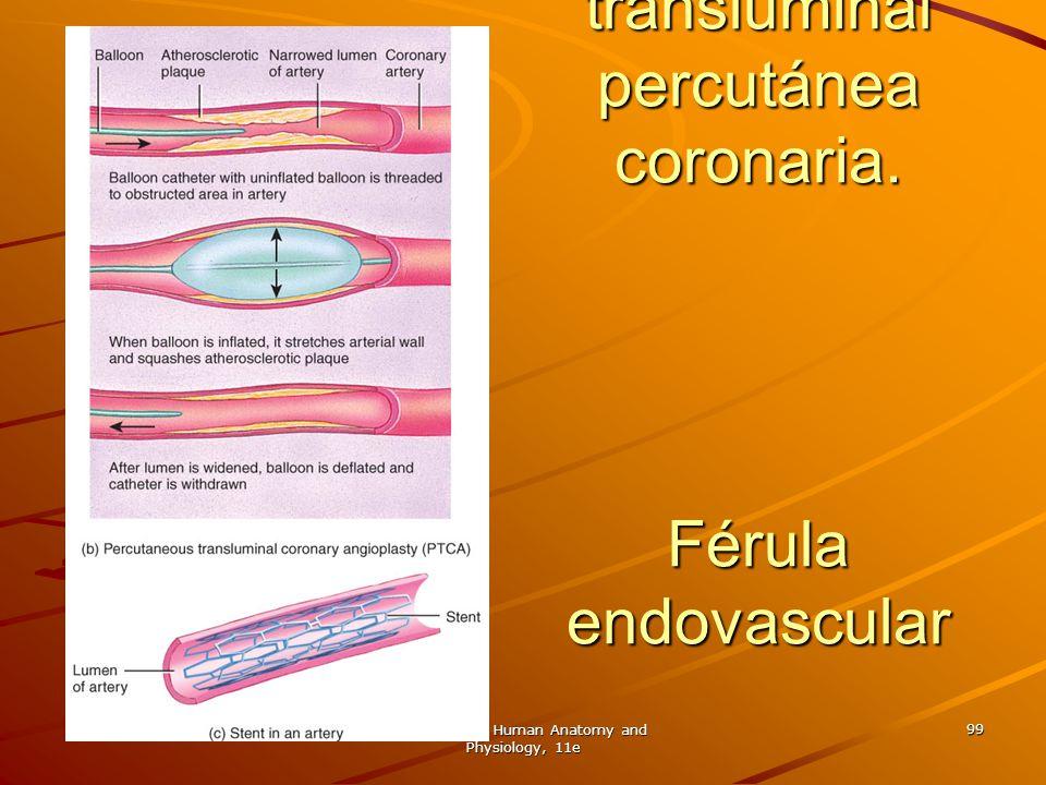 Angioplastia transluminal percutánea coronaria. Férula endovascular