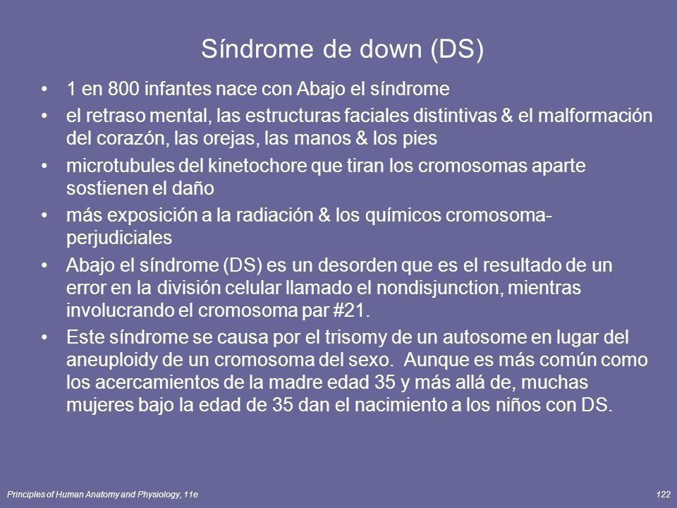 Síndrome de down (DS) 1 en 800 infantes nace con Abajo el síndrome