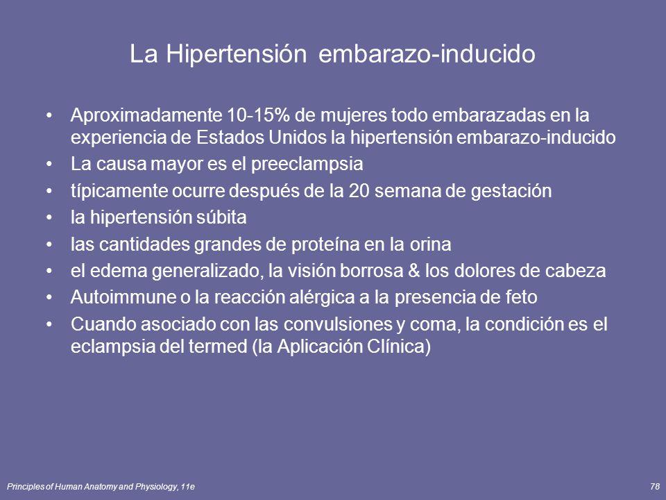 La Hipertensión embarazo-inducido