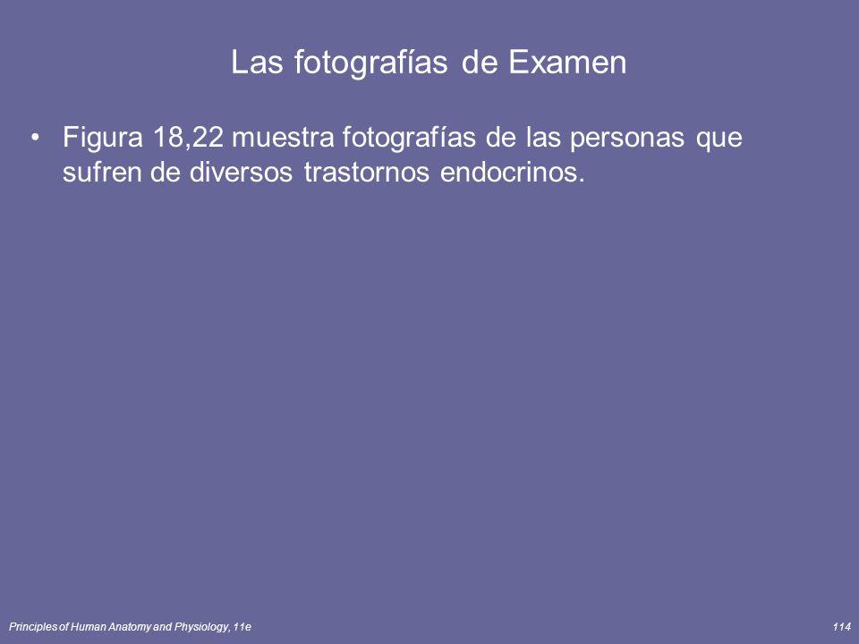 Las fotografías de Examen