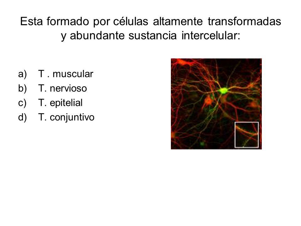 Esta formado por células altamente transformadas y abundante sustancia intercelular: