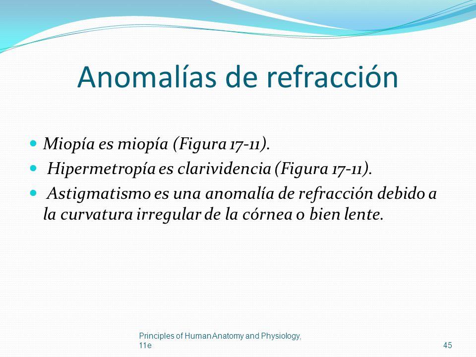 Anomalías de refracción