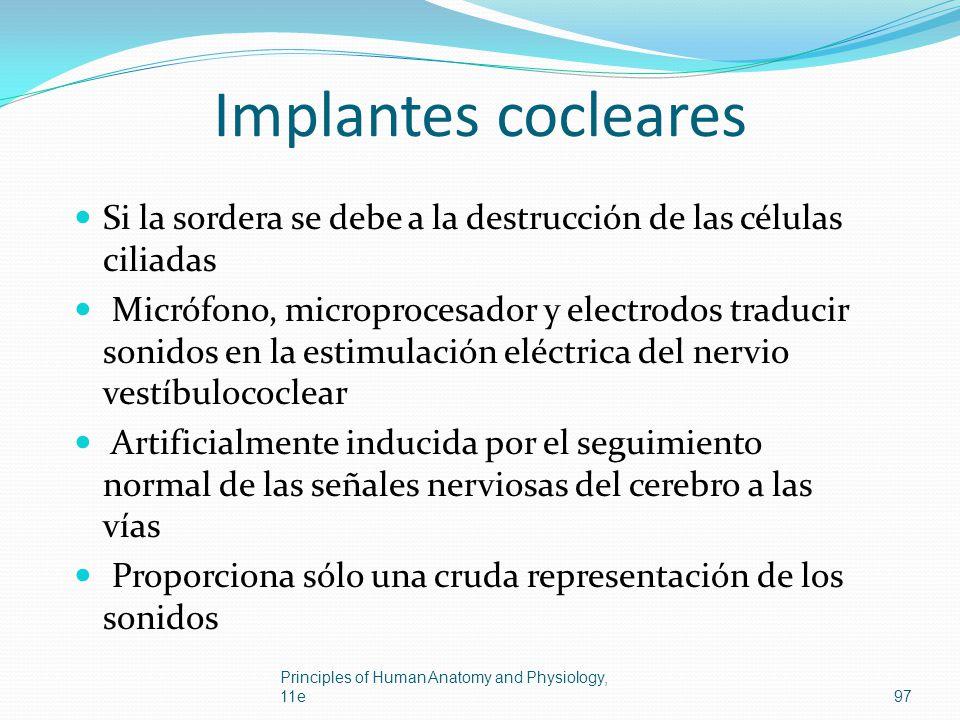 Implantes cocleares Si la sordera se debe a la destrucción de las células ciliadas.