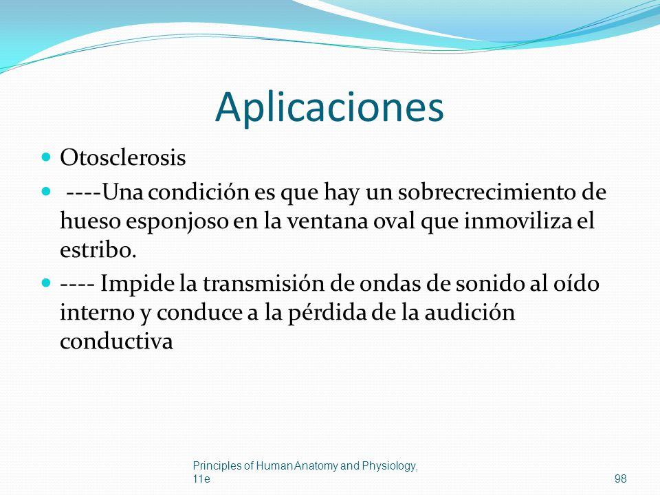 Aplicaciones Otosclerosis