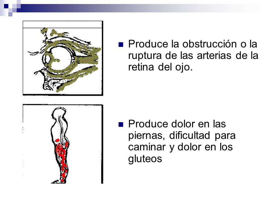 Produce la obstrucción o la ruptura de las arterias de la retina del ojo.