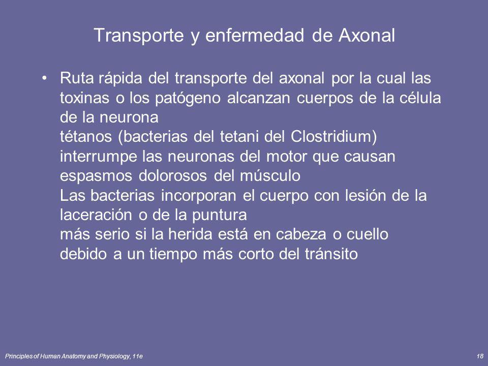 Transporte y enfermedad de Axonal