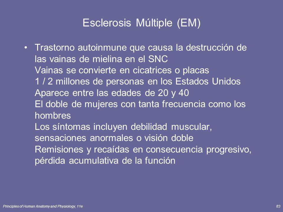 Esclerosis Múltiple (EM)