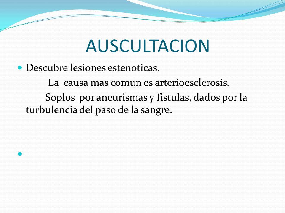 AUSCULTACION Descubre lesiones estenoticas.