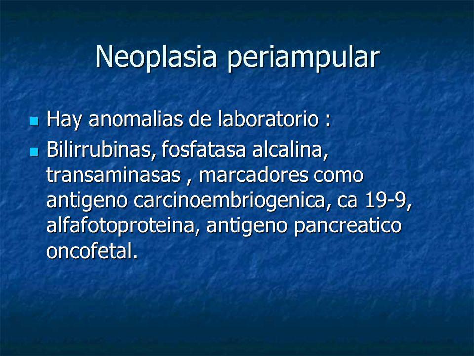 Neoplasia periampular