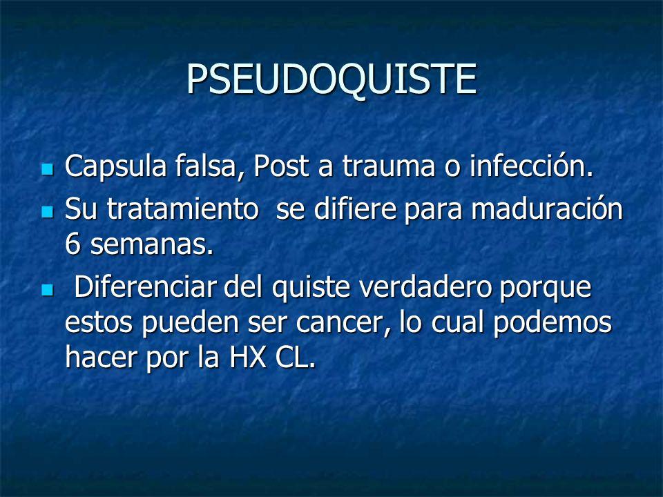 PSEUDOQUISTE Capsula falsa, Post a trauma o infección.