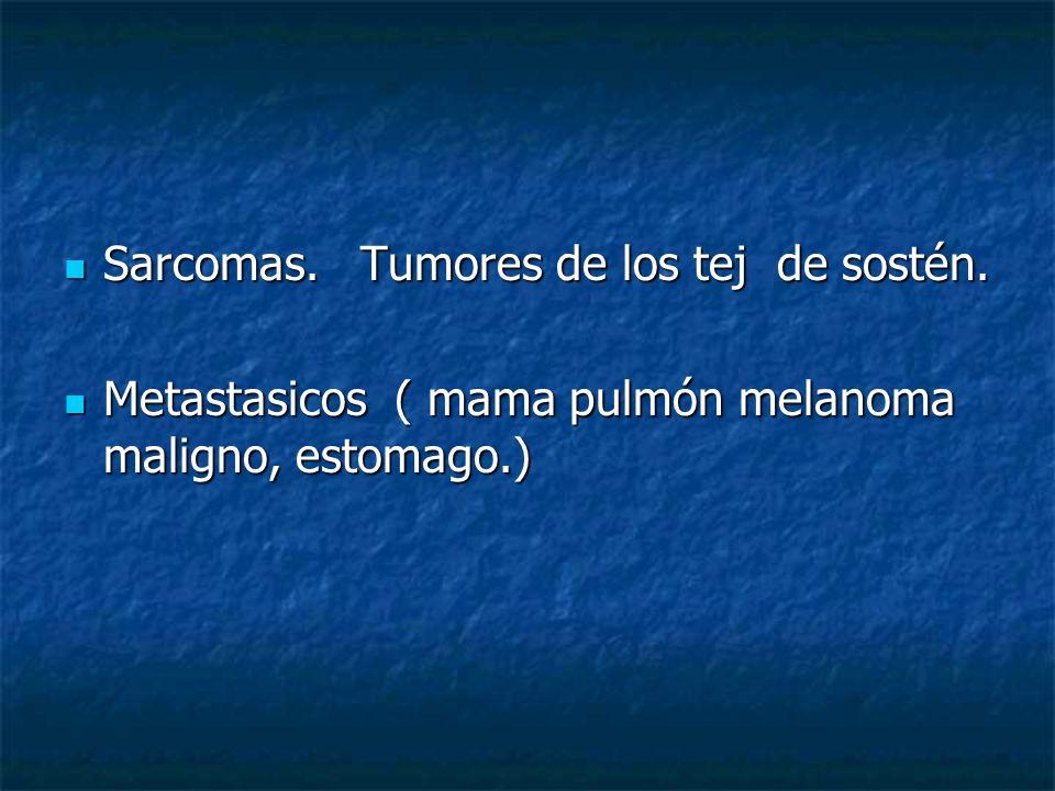 Sarcomas. Tumores de los tej de sostén.