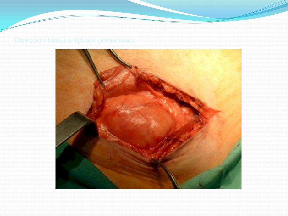 Disección hasta el lipoma preherniario