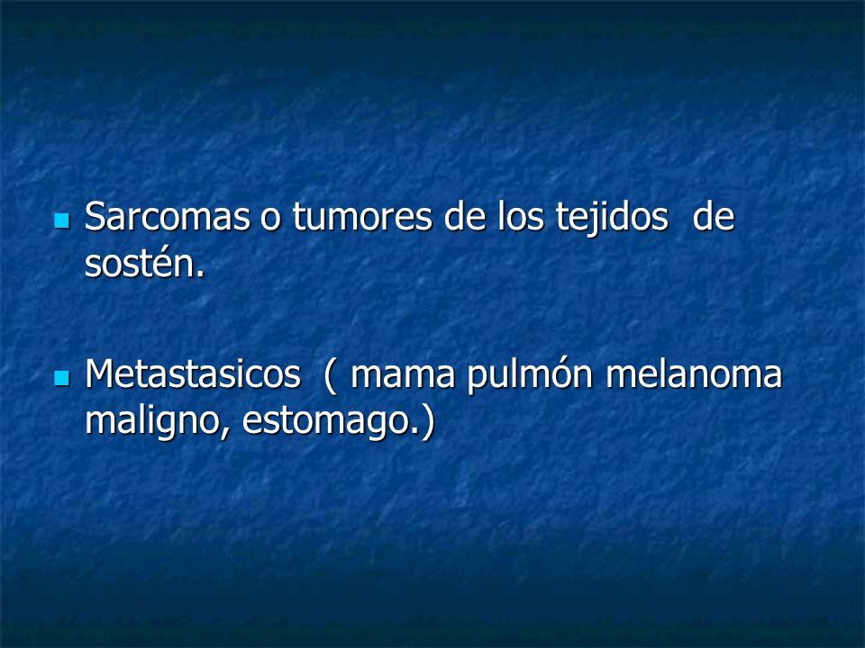 Sarcomas o tumores de los tejidos de sostén.