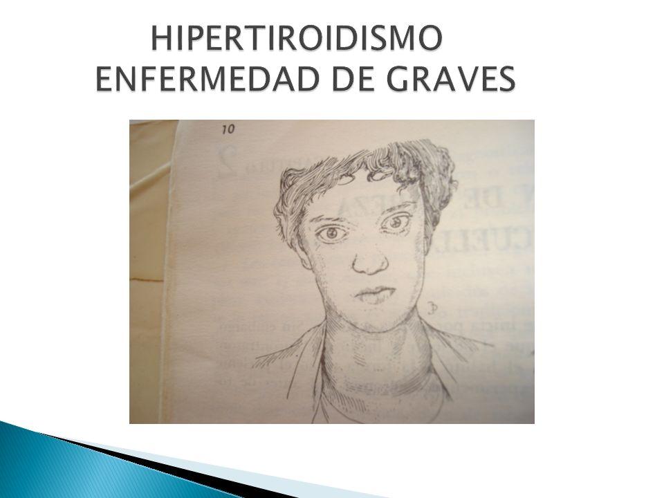 HIPERTIROIDISMO ENFERMEDAD DE GRAVES