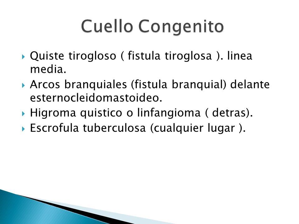 Cuello Congenito Quiste tirogloso ( fistula tiroglosa ). linea media.
