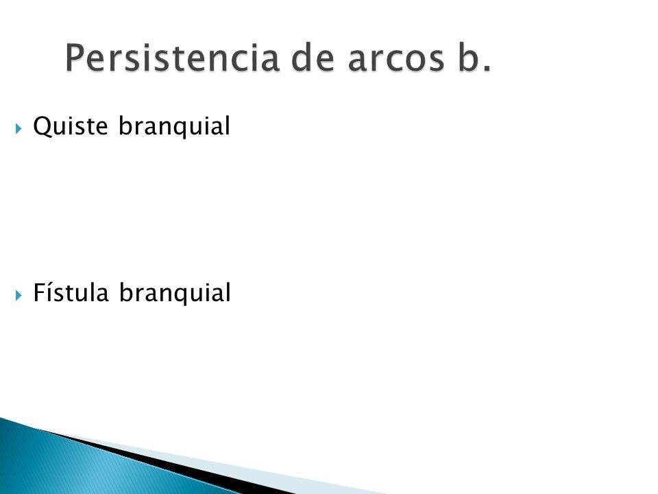 Persistencia de arcos b.