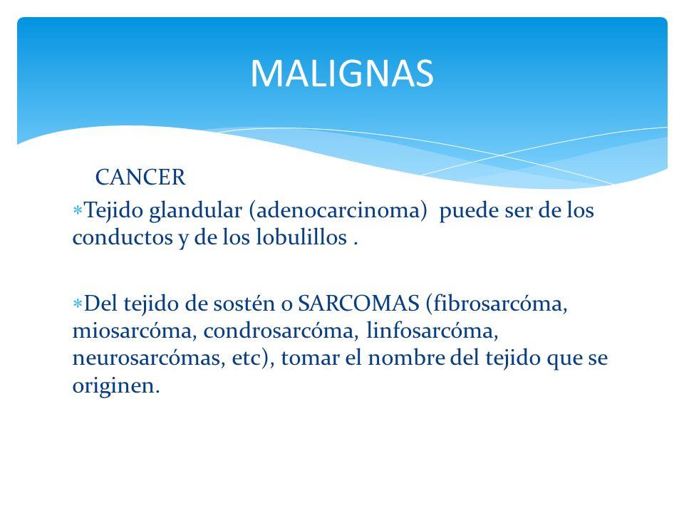 MALIGNAS CANCER. Tejido glandular (adenocarcinoma) puede ser de los conductos y de los lobulillos .