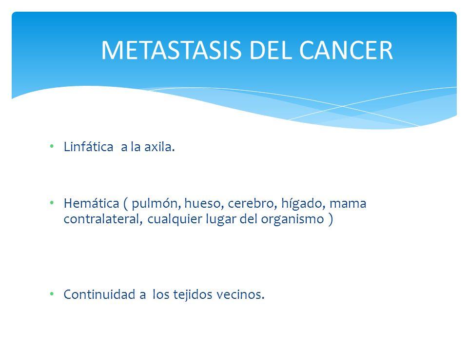 METASTASIS DEL CANCER Linfática a la axila.