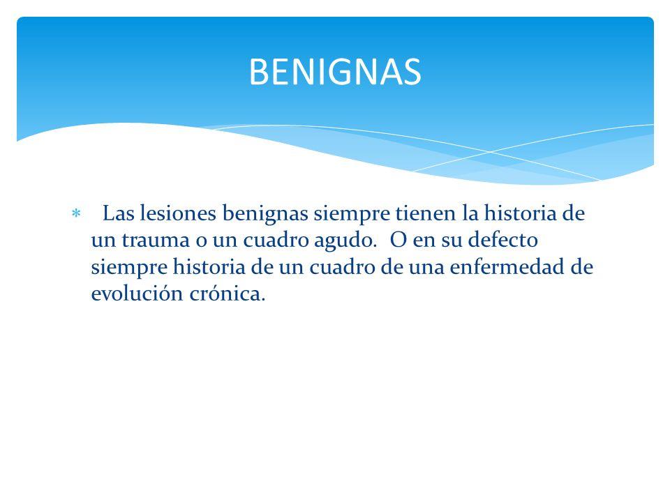 BENIGNAS
