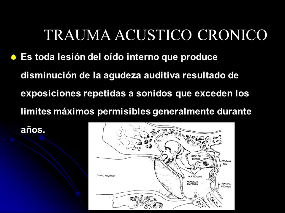 TRAUMA ACUSTICO CRONICO