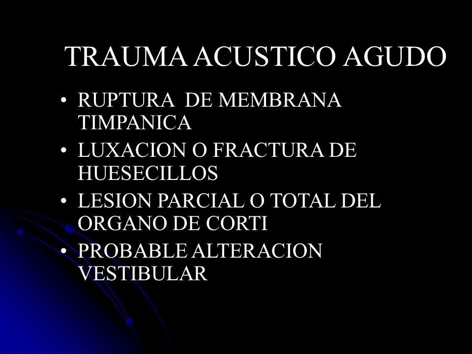 TRAUMA ACUSTICO AGUDO RUPTURA DE MEMBRANA TIMPANICA