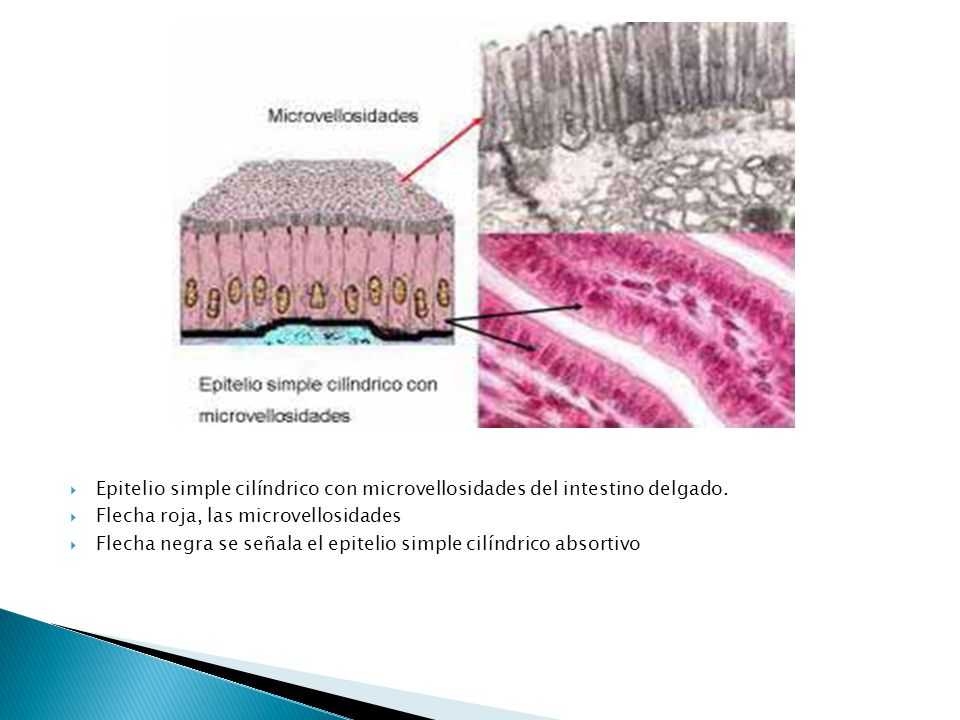 Epitelio simple cilíndrico con microvellosidades del intestino delgado.