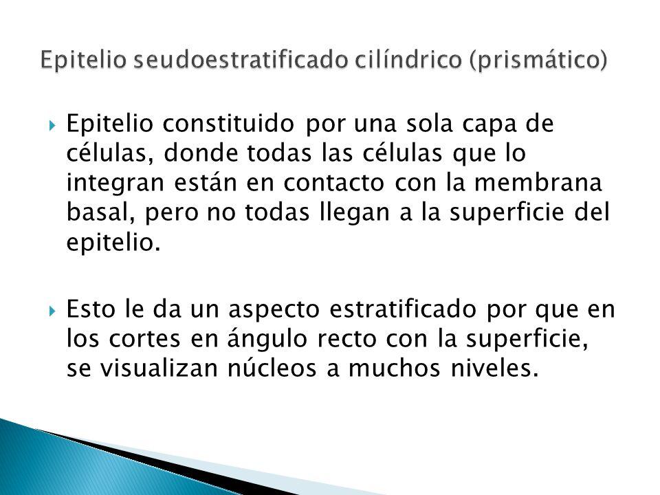 Epitelio seudoestratificado cilíndrico (prismático)