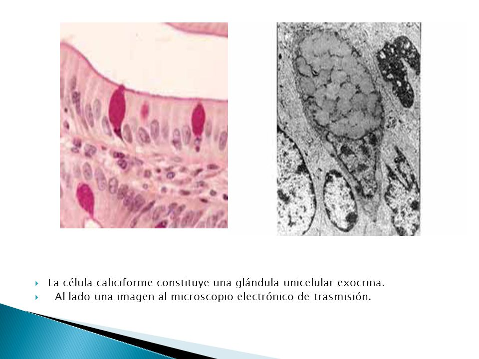 La célula caliciforme constituye una glándula unicelular exocrina.