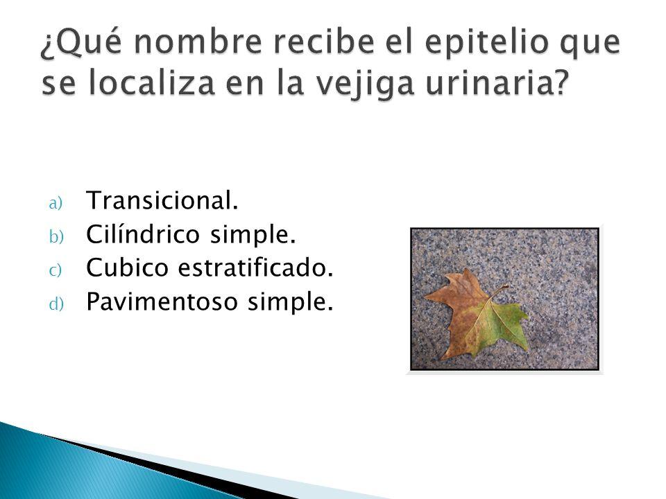 ¿Qué nombre recibe el epitelio que se localiza en la vejiga urinaria