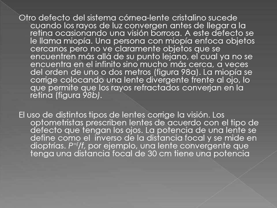 Otro defecto del sistema córnea-lente cristalino sucede cuando los rayos de luz convergen antes de llegar a la retina ocasionando una visión borrosa. A este defecto se le llama miopía. Una persona con miopía enfoca objetos cercanos pero no ve claramente objetos que se encuentren más allá de su punto lejano, el cual ya no se encuentra en el infinito sino mucho más cerca, a veces del orden de uno o dos metros (figura 98a). La miopía se corrige colocando una lente divergente frente al ojo, lo que permite que los rayos refractados converjan en la retina (figura 98b).
