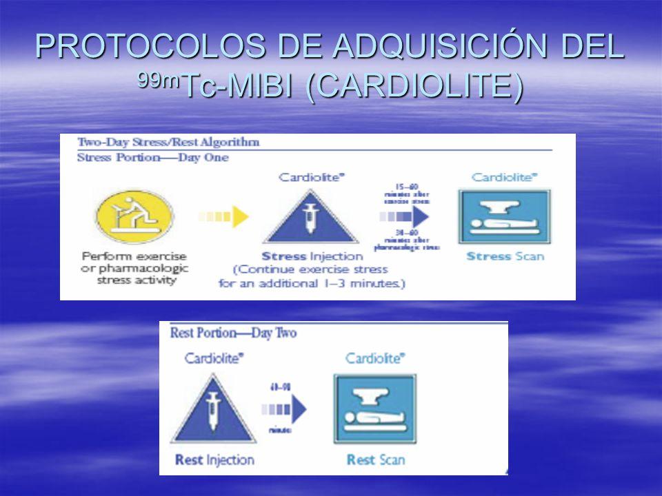 PROTOCOLOS DE ADQUISICIÓN DEL 99mTc-MIBI (CARDIOLITE)