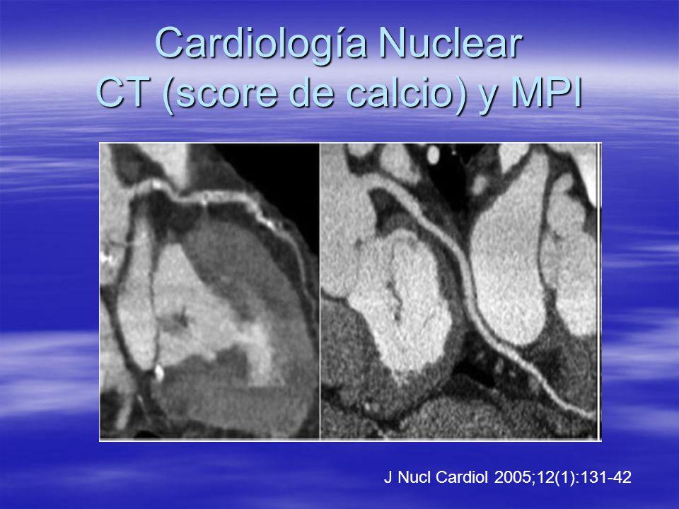 Cardiología Nuclear CT (score de calcio) y MPI
