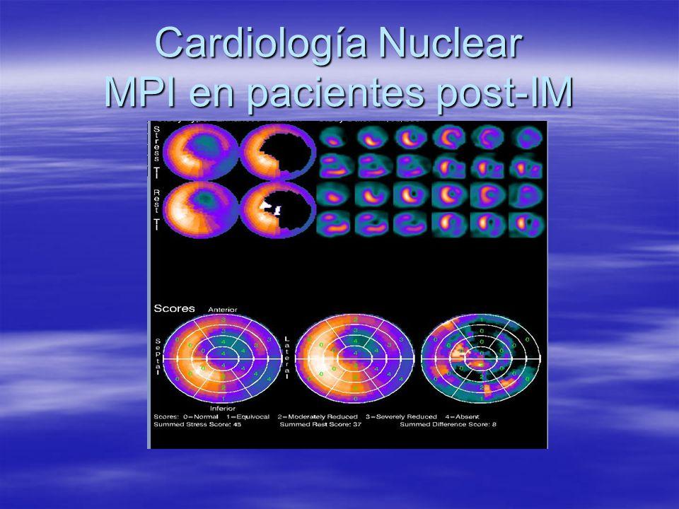 Cardiología Nuclear MPI en pacientes post-IM