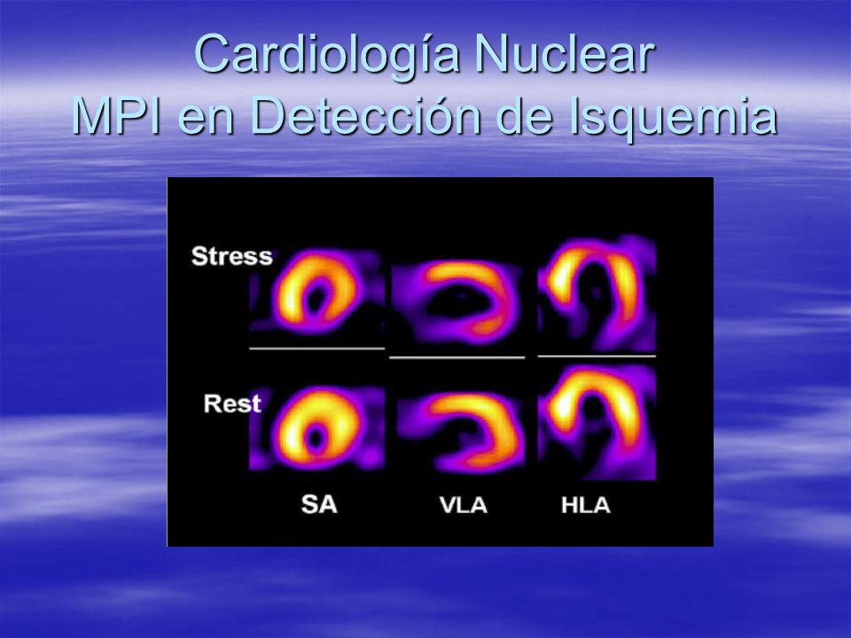 Cardiología Nuclear MPI en Detección de Isquemia