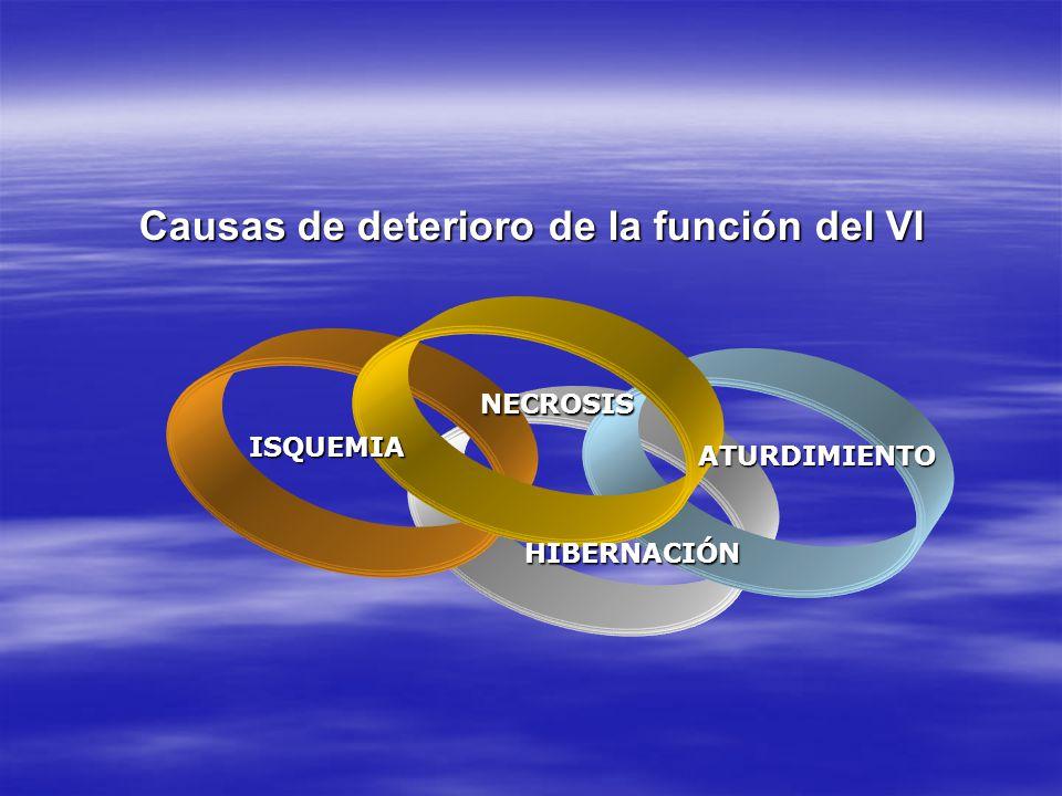 Causas de deterioro de la función del VI