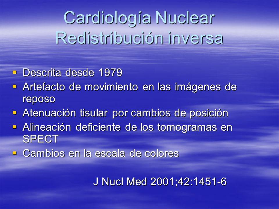 Cardiología Nuclear Redistribución inversa
