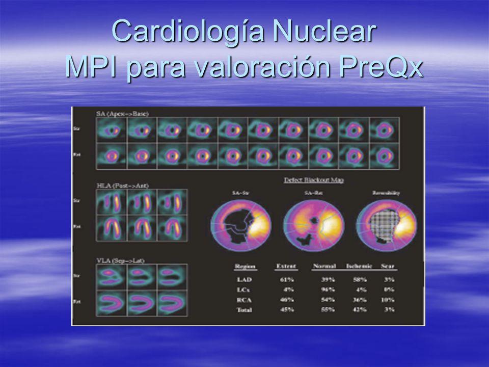 Cardiología Nuclear MPI para valoración PreQx
